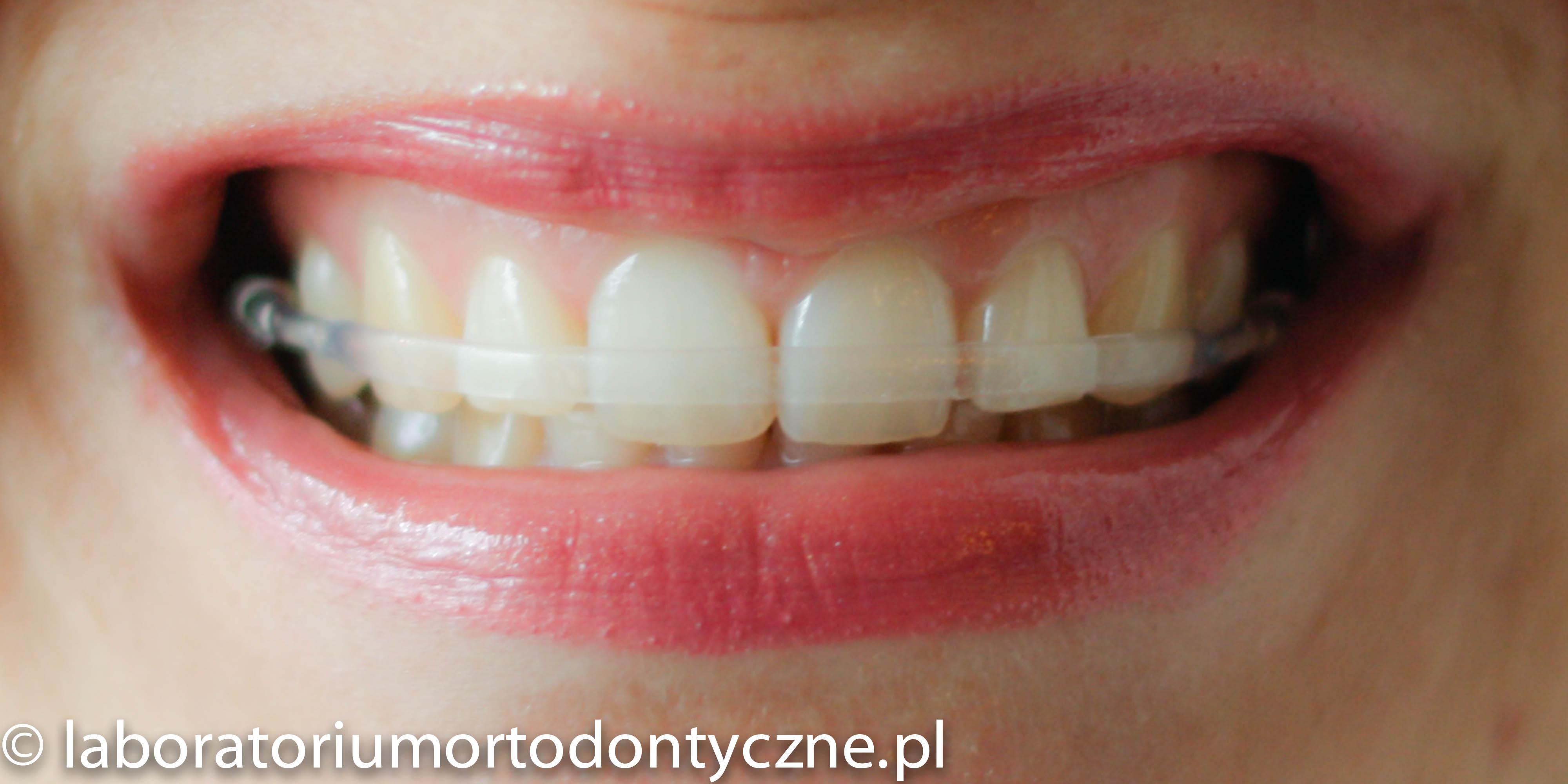 Aparat retencyjny Clear Bow – Laboratorium Ortodontyczne